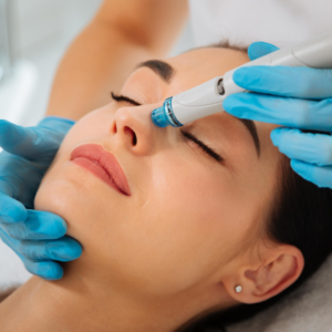 Hydrafacial vortex extractions