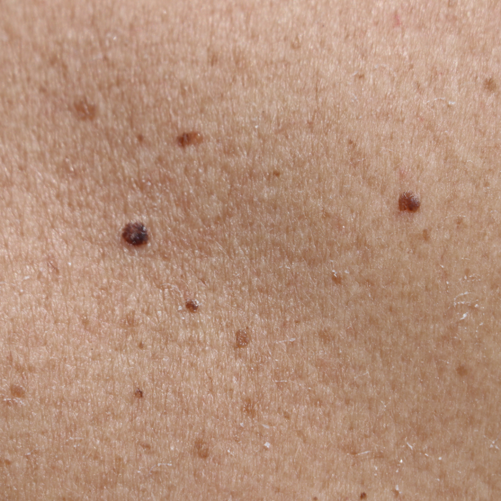moles that look like blackheads or comedones